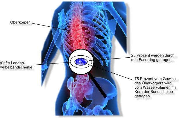 Rückenschmerzen unterer Rücken durch Wassermangel im Körper